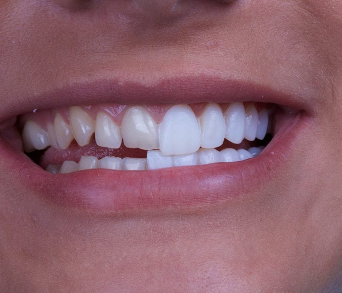 Cosmetic Dentists Porcelain Veneers - Boston Dental
