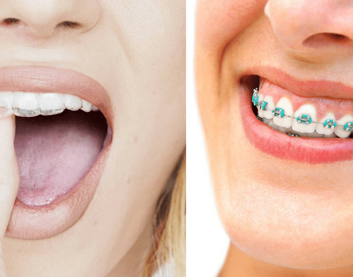 Invisalign Vs Braces by Our Boston Dentists