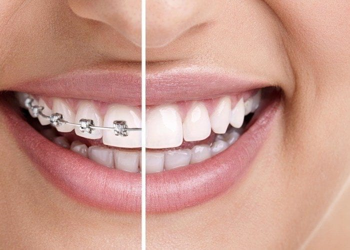 Benefits of Invisalign over Braces in Adults