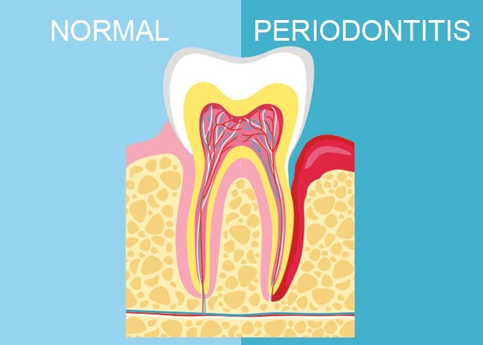 What is Periodontitis? Signs, Symptoms, and Treatments
