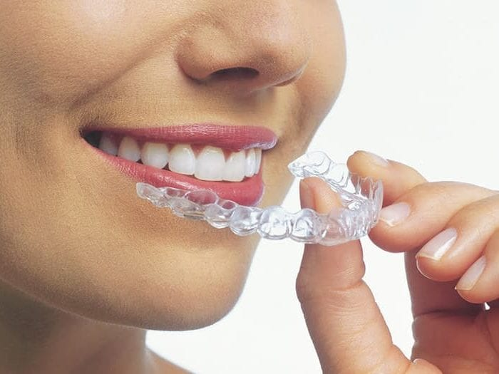 Reasons To Get Invisalign Braces