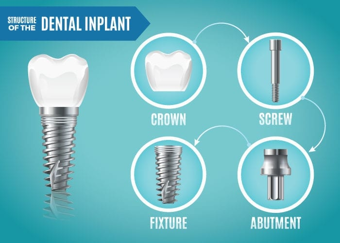 Why are dental implants important?