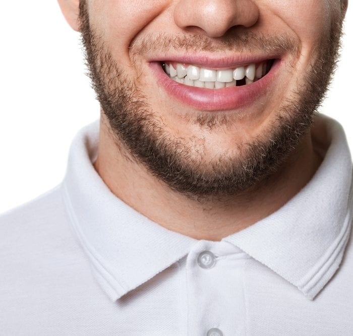 What Do I Do if I Lose a Tooth?