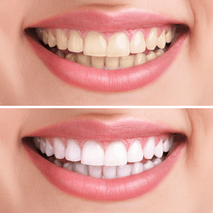 Strategies to Prevent Tooth Stains